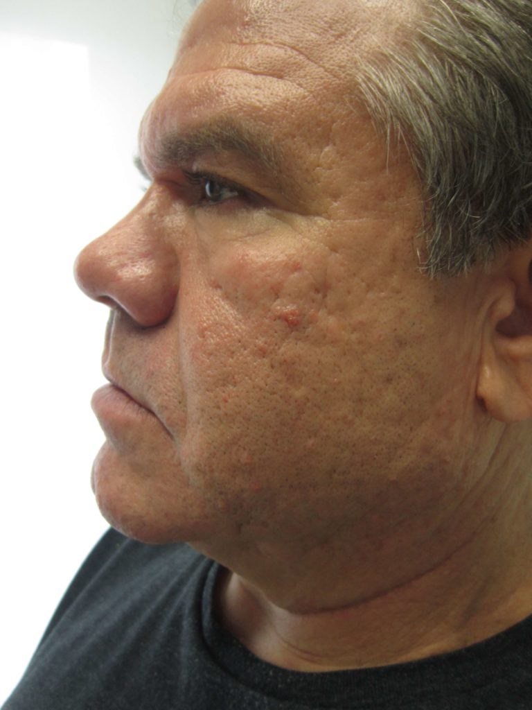 Microneedling Results on Man