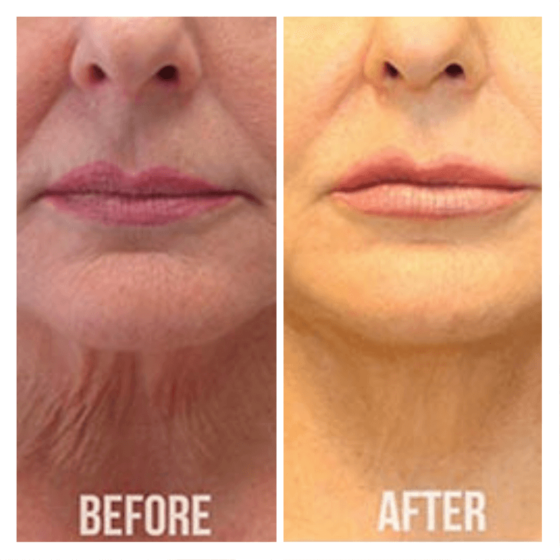 Thread Lift Procedure Before & After - Chin & Neck