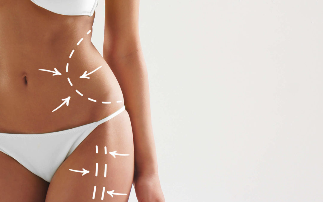 SculpSure: The Latest Fat Reduction & Body Contouring Solution