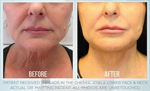 A woman before and after thread lift