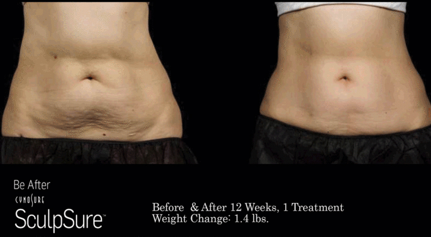 1 treatment 12 weeks before and after body sculpting