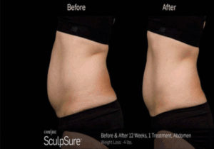 before and after 12 weeks body sculpting