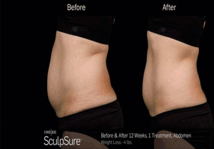 Before and After of body contouring solution