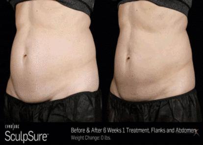 sculpsure vs liposuction
