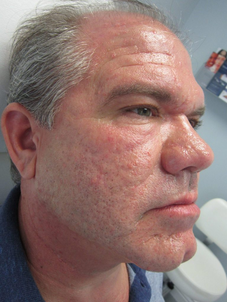after result of microneedling shrinks pores