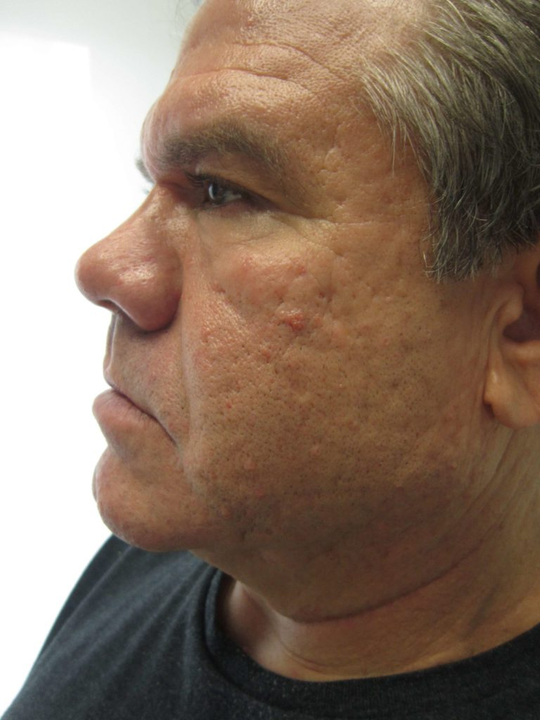 after result of microneedling