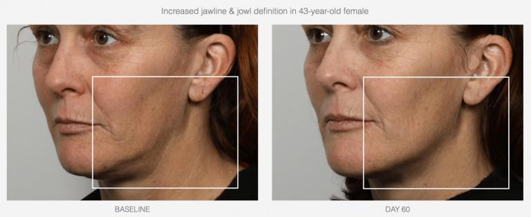 Peel Facial