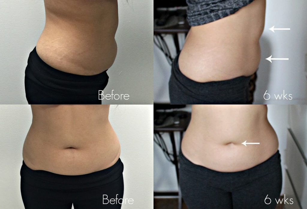 before and after 6 weeks of body sculpting