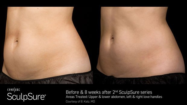 before and after body sculpting