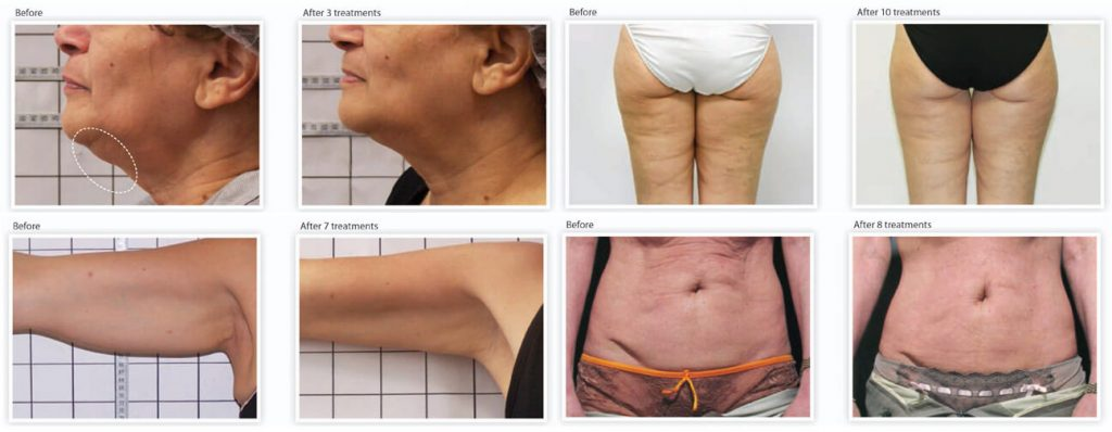 Image result of skin tightening treatment