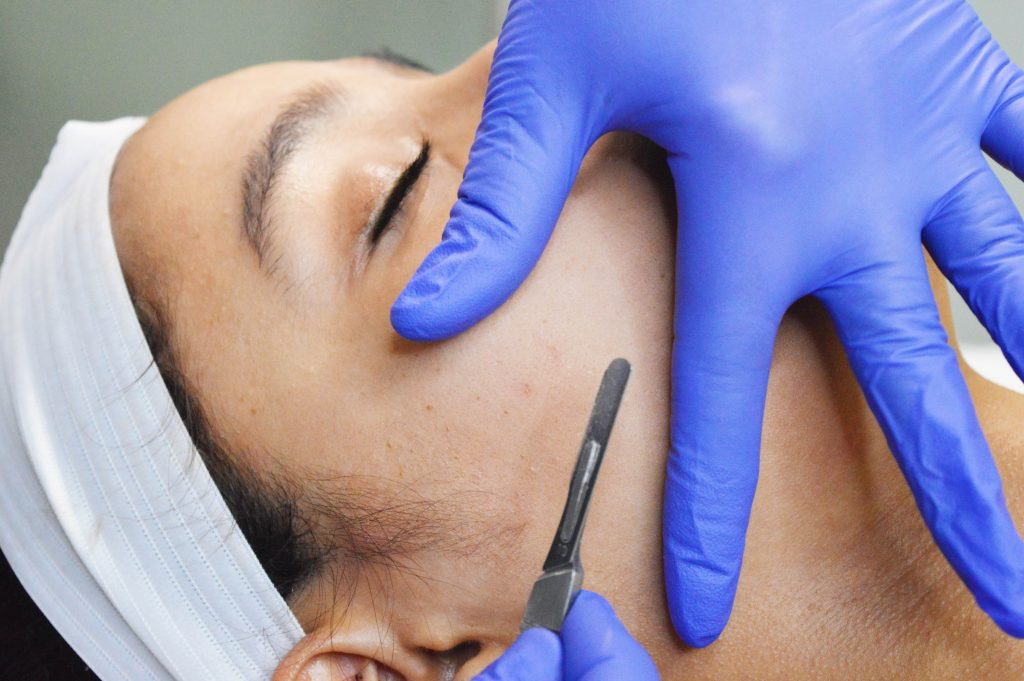dermaplaning west palm beach
