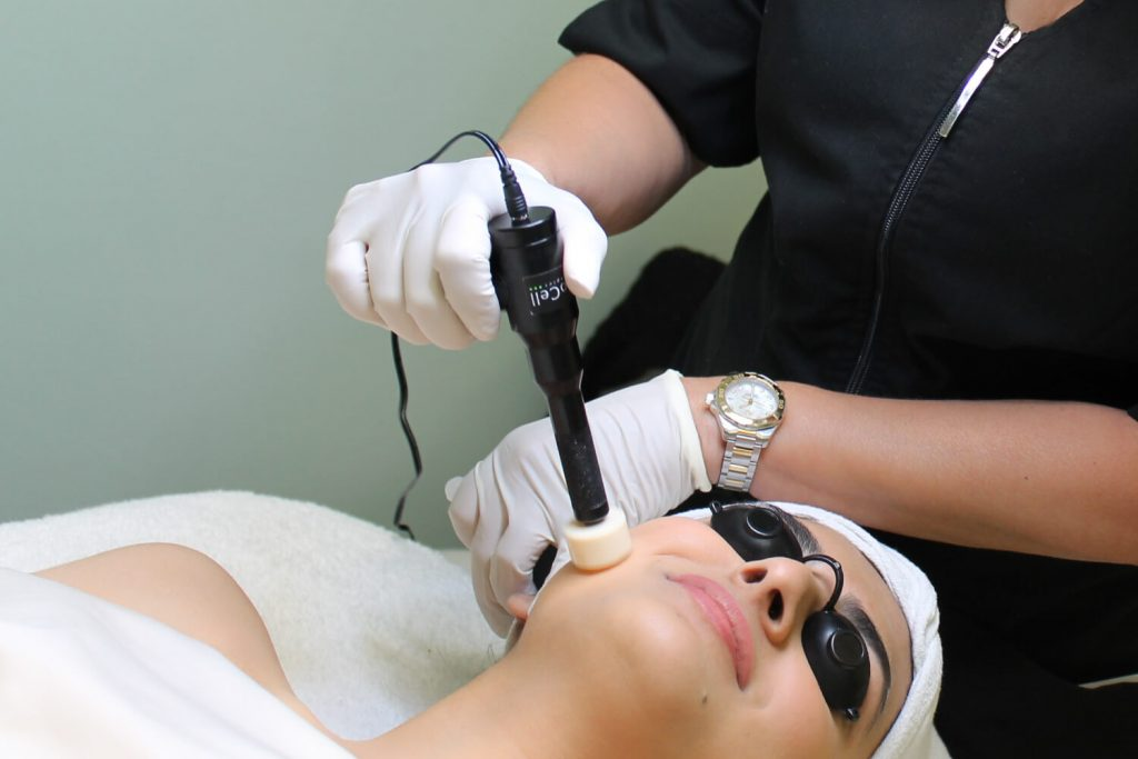 microneedling palm beach
