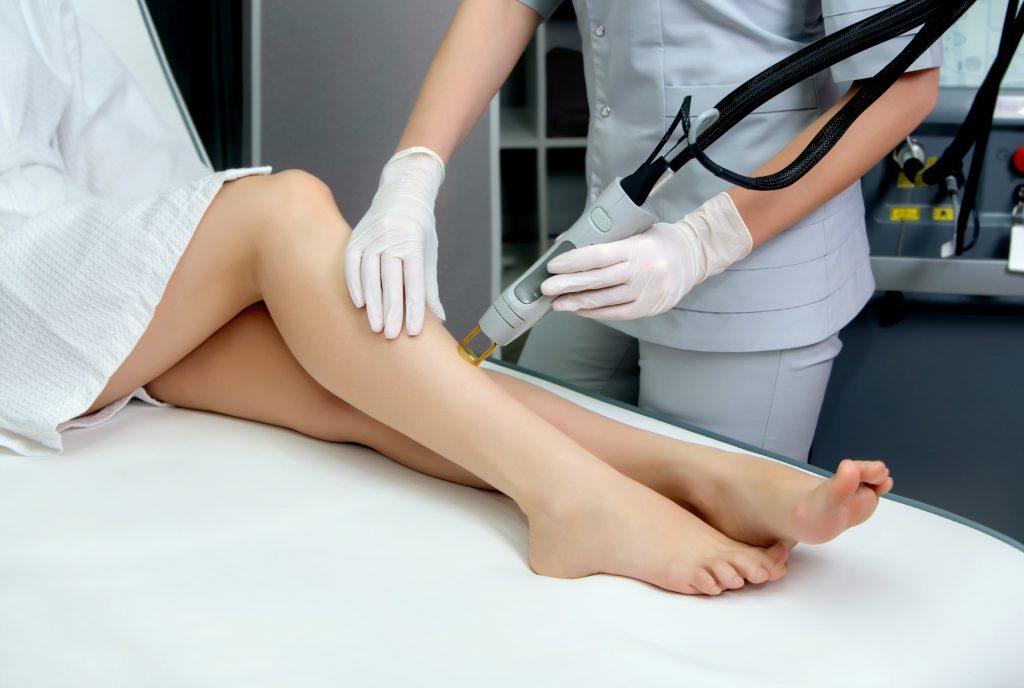 laser hair removal legs west palm beach