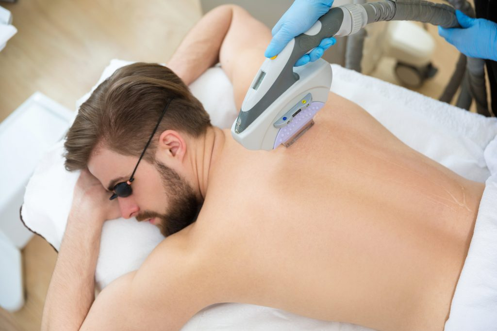 laser hair removal back west palm beach