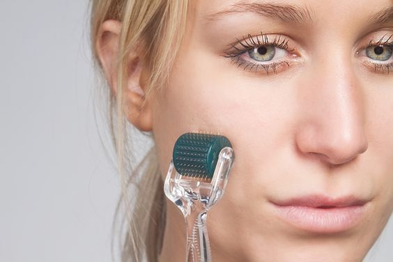 The Dangers Of Microneedling At Home: All You Need To Know