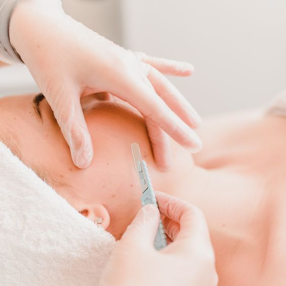 The Pros and Cons of Dermaplaning: Discover If It's Right For You