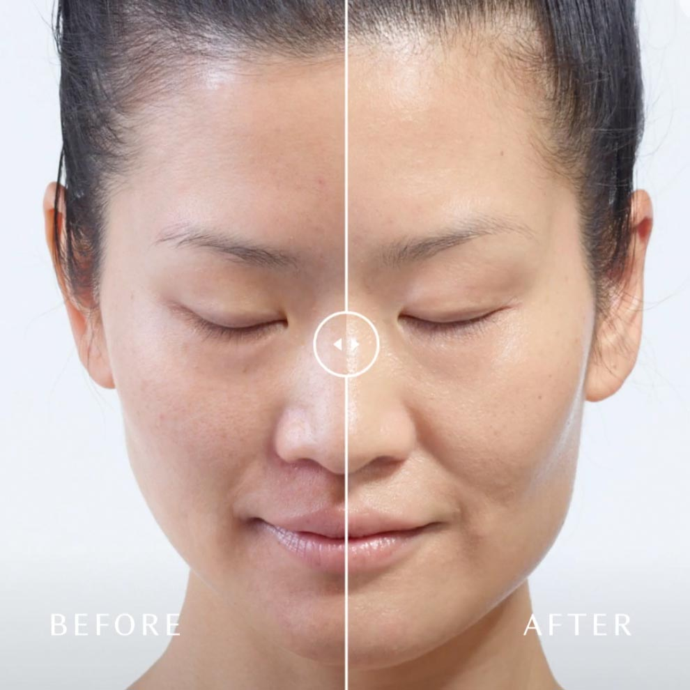 Why Choose This Facial Over Others?